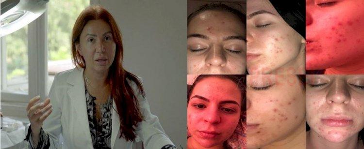Acuzații grave la adresa așa-zis-ului doctor dermatolog, Marinescu Ioana Lavinia