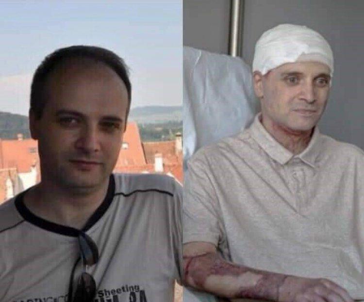 Medicul erou Cătălin Denciu s-a întors acasă, după 6 luni de tratament în Belgia